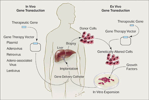 Types Of Gene Therapy